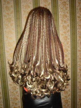 Тиреоидит выпадение волос